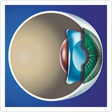 phake-linse_illu_implantiertevisian-icl-staar-surgical_zusatzlinse